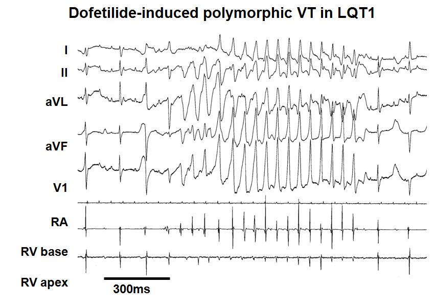 Transgenic rabbit models in pro-arrhythmia research