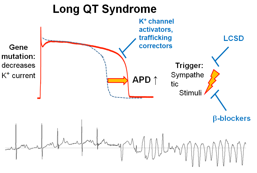 Hereditable arrhythmias associated with abnormal function of the potassium channels