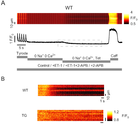 Obstruction of ventricular Ca2+ ‐dependent arrhythmogenicity by IP3‐ triggered SR‐Ca2+ release